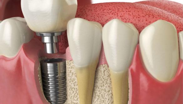 Implants dentals de primer nivell