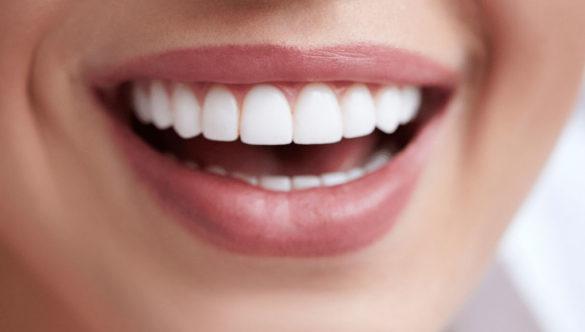 Carilles dentals (estètica dental)