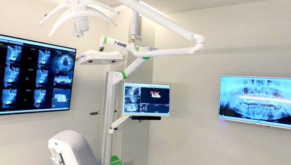 X-Guide: La gran tecnologia de col·locació d'implants dentals
