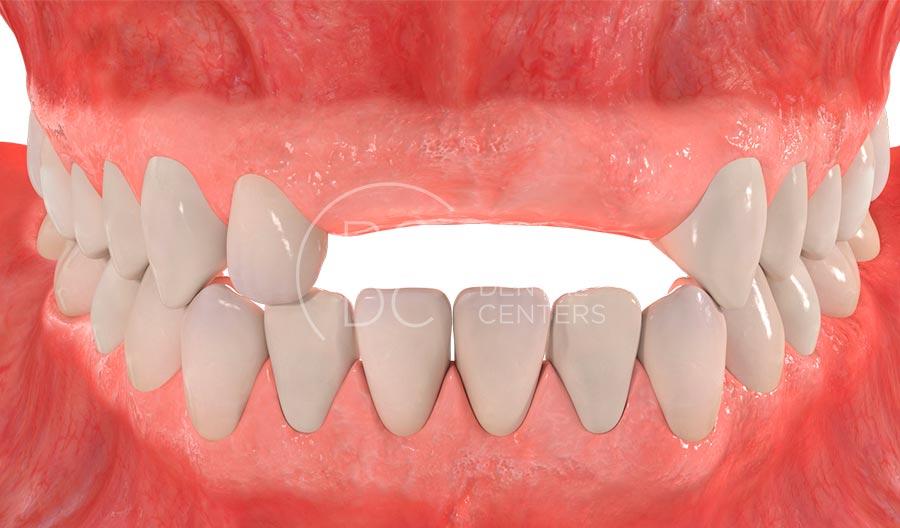 absencia-de-diverses-dents
