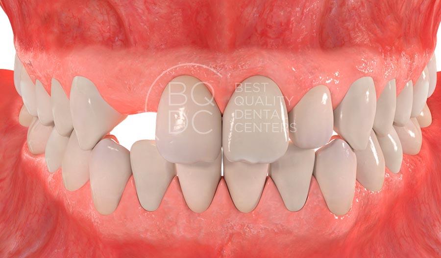 absencia-una-dent