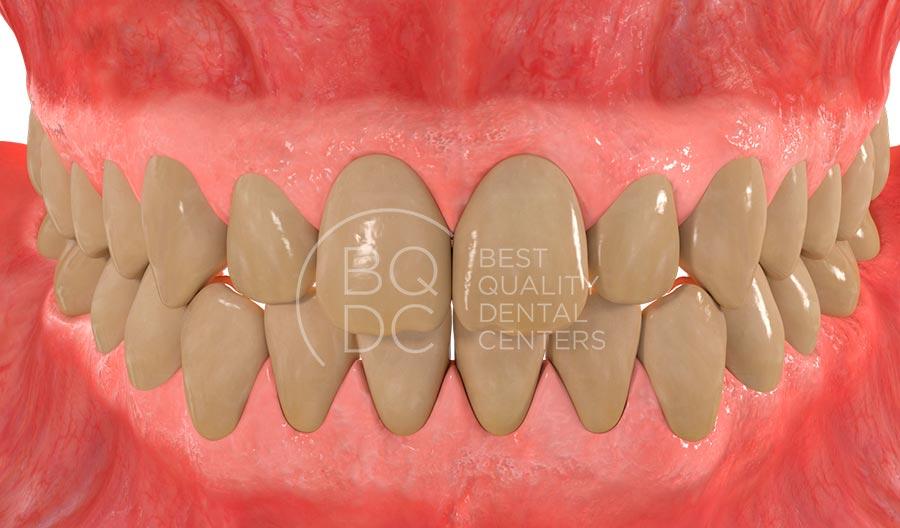 dents-grogues